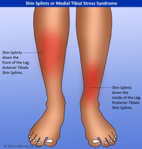 Shin-Splints